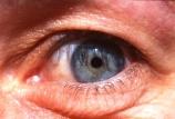 cornea;eye;eyeball;eyelash;eyelashes;iris;socket